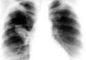 Radiografia de um pulmão
