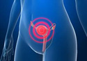 Desenho do colo do útero afetado pela doença