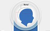 Arte do MS mostrando a cabeça de uma pessoa e o tamanho normal de circunferência