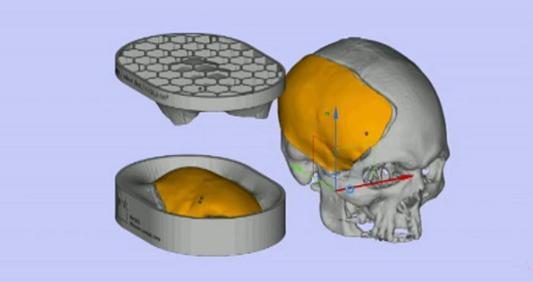 Desenho de um crânio